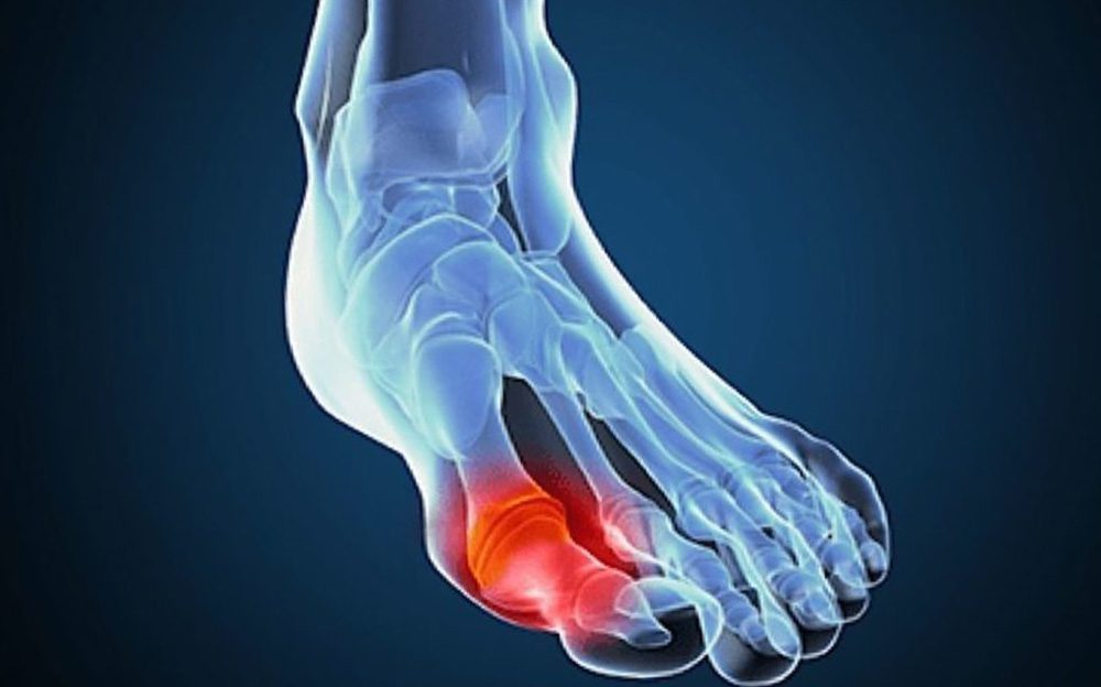Как лечить подагру в домашних условиях на ногах - Лечение в домашних условиях