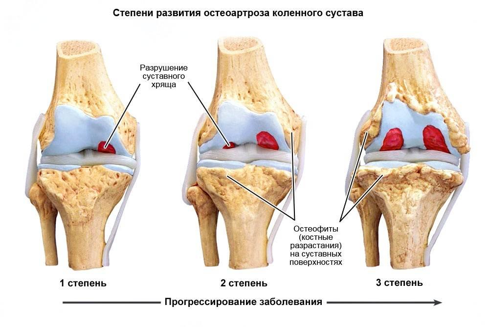 Гонартроз коленного сустава 3 степени и его лечение