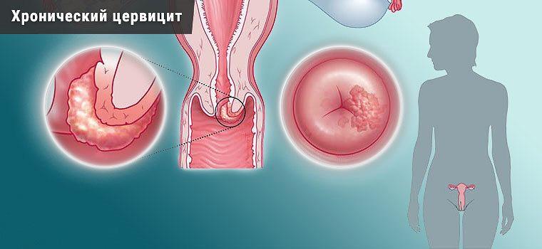 Диагностика и лечение хронического цервицита
