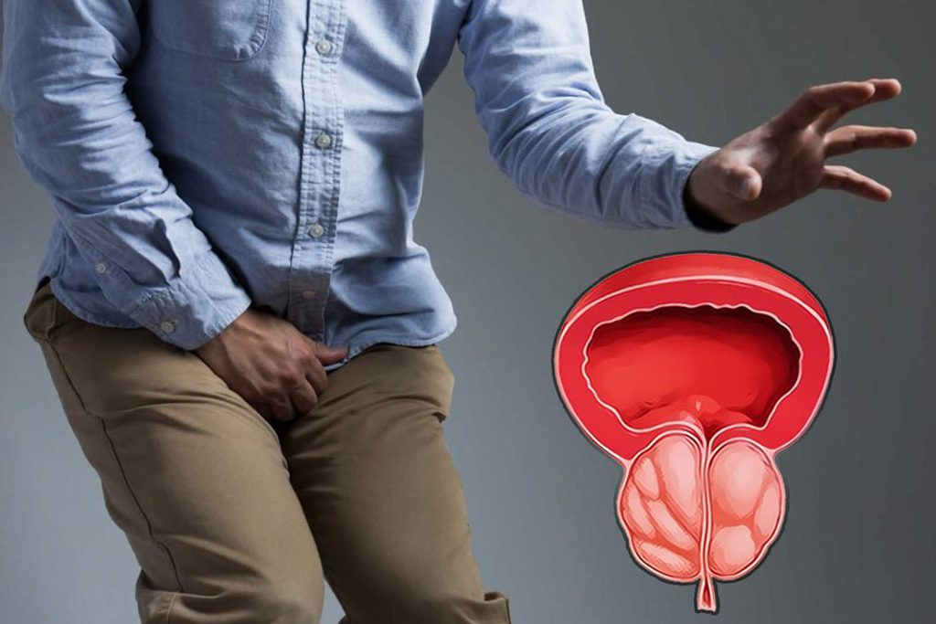 Эффективное лечение простатита в домашних условиях народными средствами
