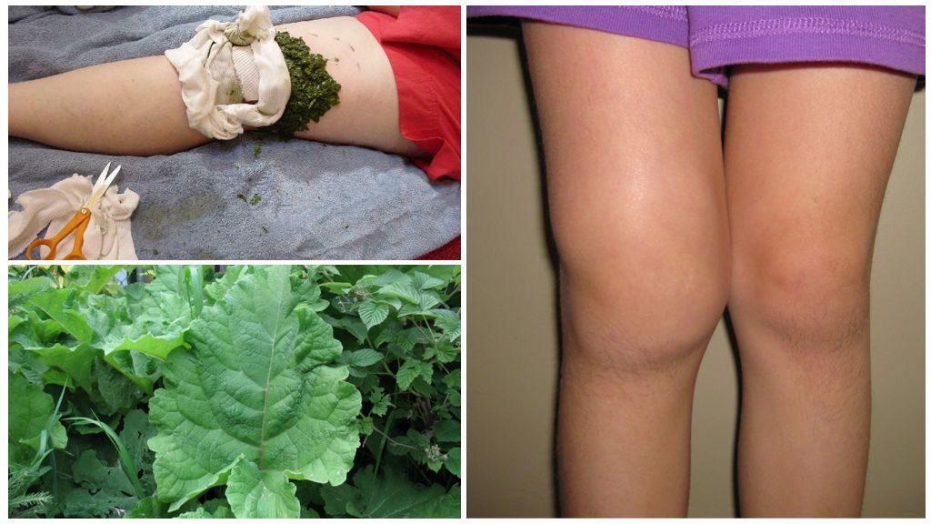 Листья хрена при артрозе коленного сустава - Коленный сустав
