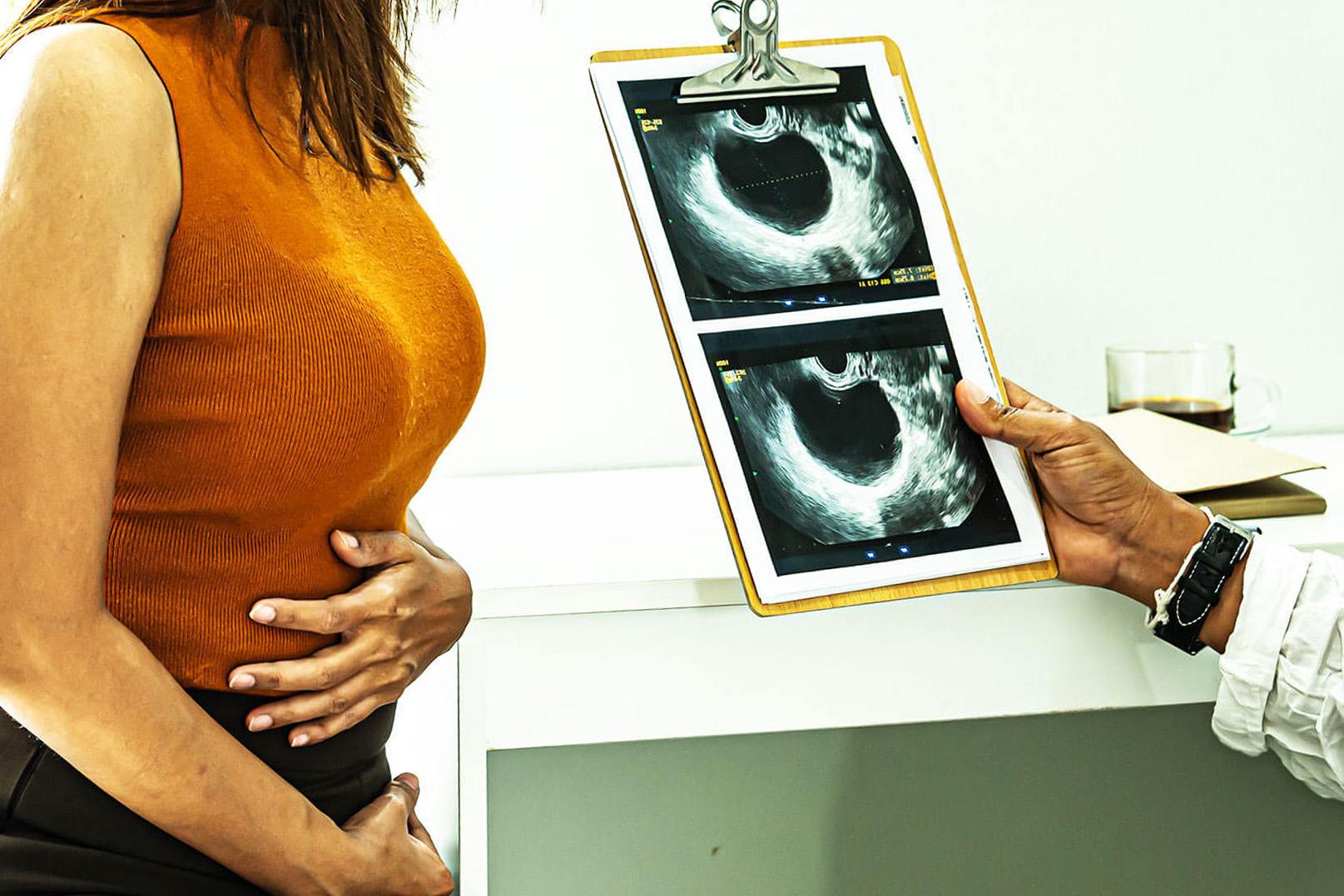 Симптомы и лечение разрыва кисты яичника. Срочная помощь при разрыве кисты