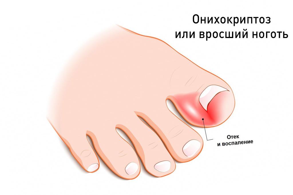 Онихокриптоз или лечение вросших ногтей народными средствами