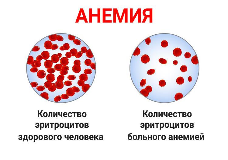 Признаки развития анемии и методы диагностики